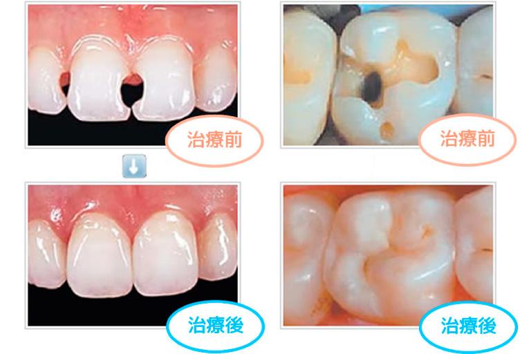 歯質切削量の少ない「ダイレクトボンディング&レジン充填」