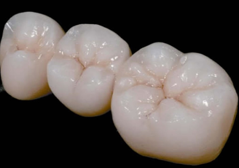 歯の特徴づけ