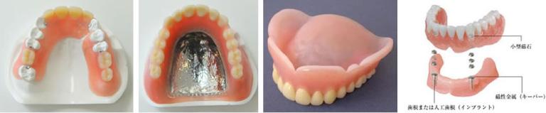 複数の入れ歯素材から最適なものを選んでいただけます