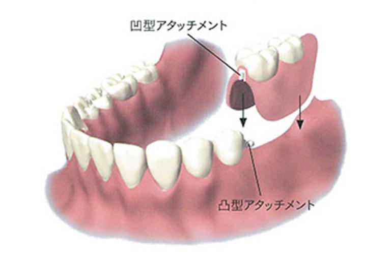 口腔内に固定「アタッチメント義歯」