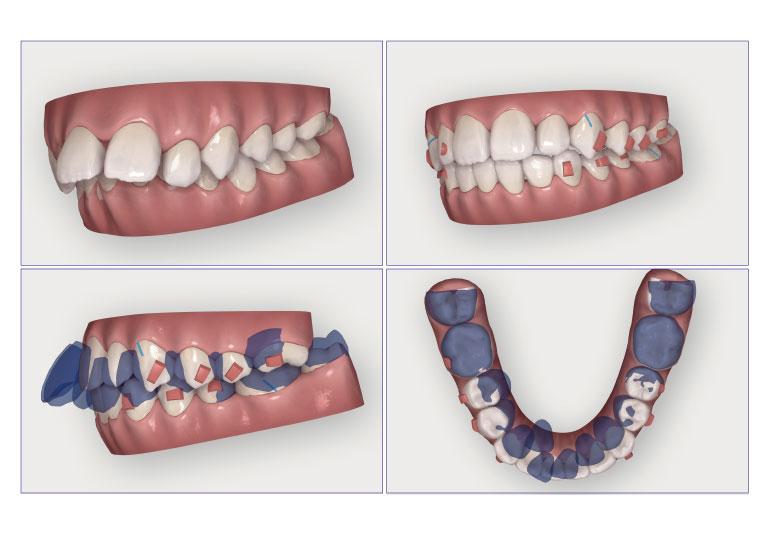 歯の移動を視覚的に確認