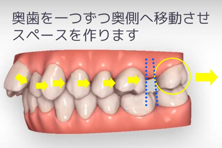 歯を奥に移動することでスペースを確保する