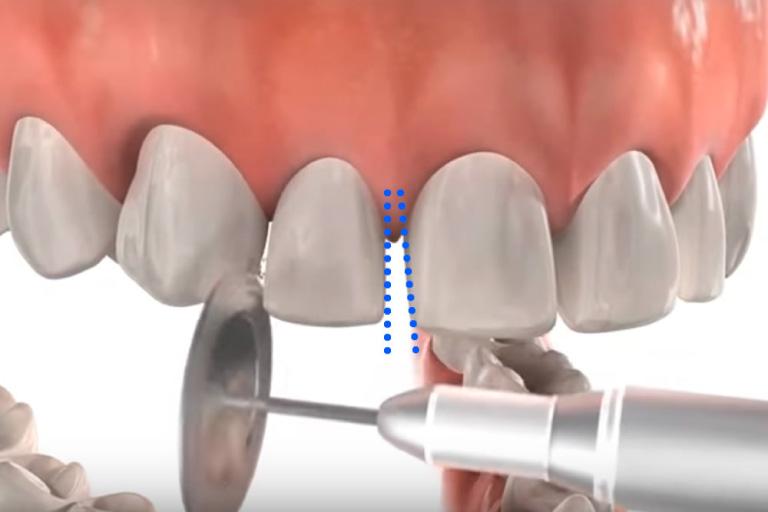 歯の側面を削ることでスペースを作る