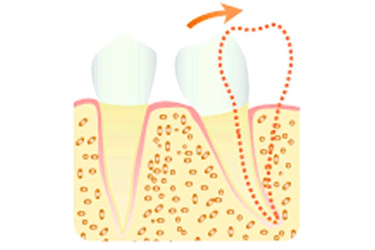 歯軸傾斜の改善によるスペースの確保