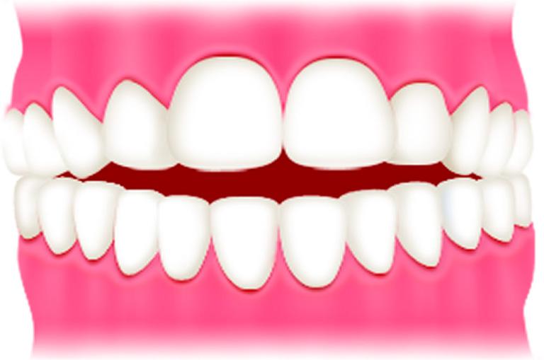 開咬(前歯が開く)