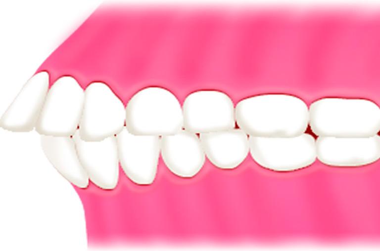 子どもの出っ歯 | 世田谷通りリキ歯科・矯正歯科