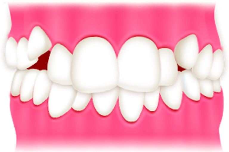 子どもの八重歯・叢生 | 世田谷通りリキ歯科・矯正歯科