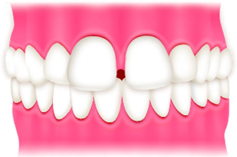 子どものすきっ歯 | 世田谷通りリキ歯科・矯正歯科