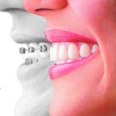 矯正歯科(見えない矯正) | 世田谷通りリキ歯科・矯正歯科