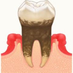 予防歯科・歯周病 | 世田谷通りリキ歯科・矯正歯科