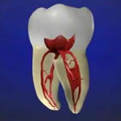 痛くない虫歯治療 | 世田谷通りリキ歯科・矯正歯科