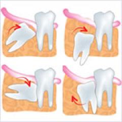 痛くない親知らずの抜歯 | 世田谷通りリキ歯科・矯正歯科