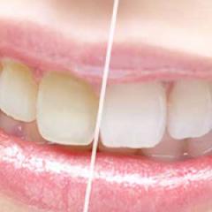 ホワイトニング | 世田谷通りリキ歯科・矯正歯科