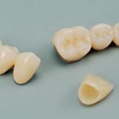 つめ物・被せ物 | 世田谷通りリキ歯科・矯正歯科