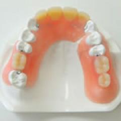 入れ歯(デンチャー) | 世田谷通りリキ歯科・矯正歯科