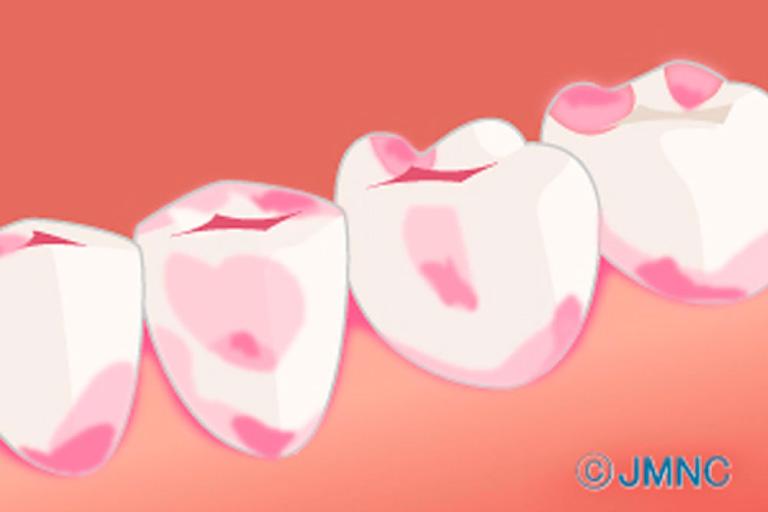 3. 虫歯検知液の使用で正確な歯質除去
