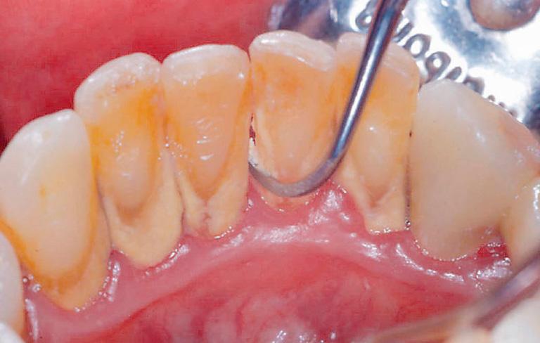お子さまに治療内容をきちんと伝える | 世田谷通りリキ歯科・矯正歯科