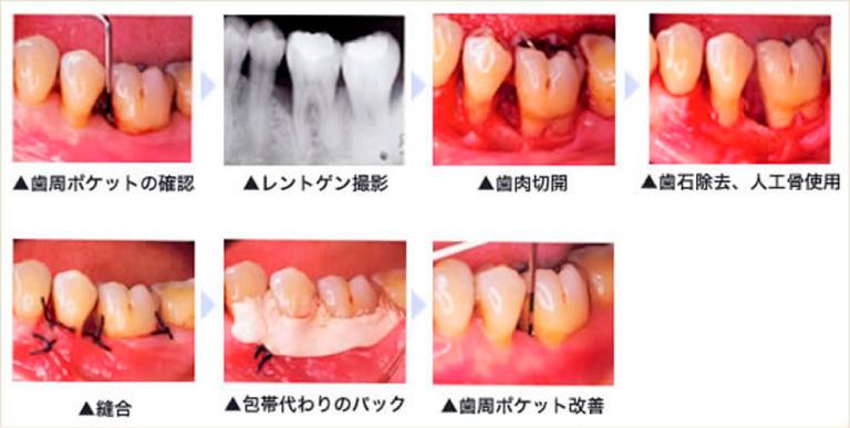 歯周外科(重度の症例に適応)