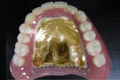 補強床義歯