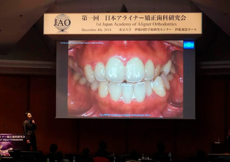 2014 第一回日本アライナー矯正研究会にてインビザラインについて講演