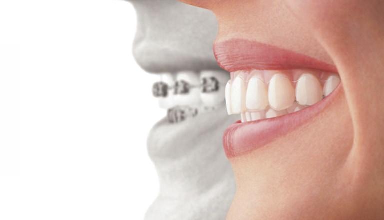 大人の矯正 | 世田谷通りリキ歯科・矯正歯科
