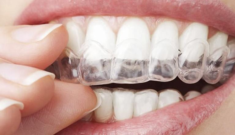 部分矯正 | 世田谷通りリキ歯科・矯正歯科