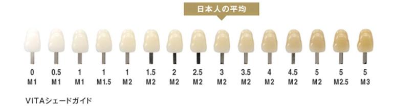 どれくらい歯が白くなるの? | ホワイトニング