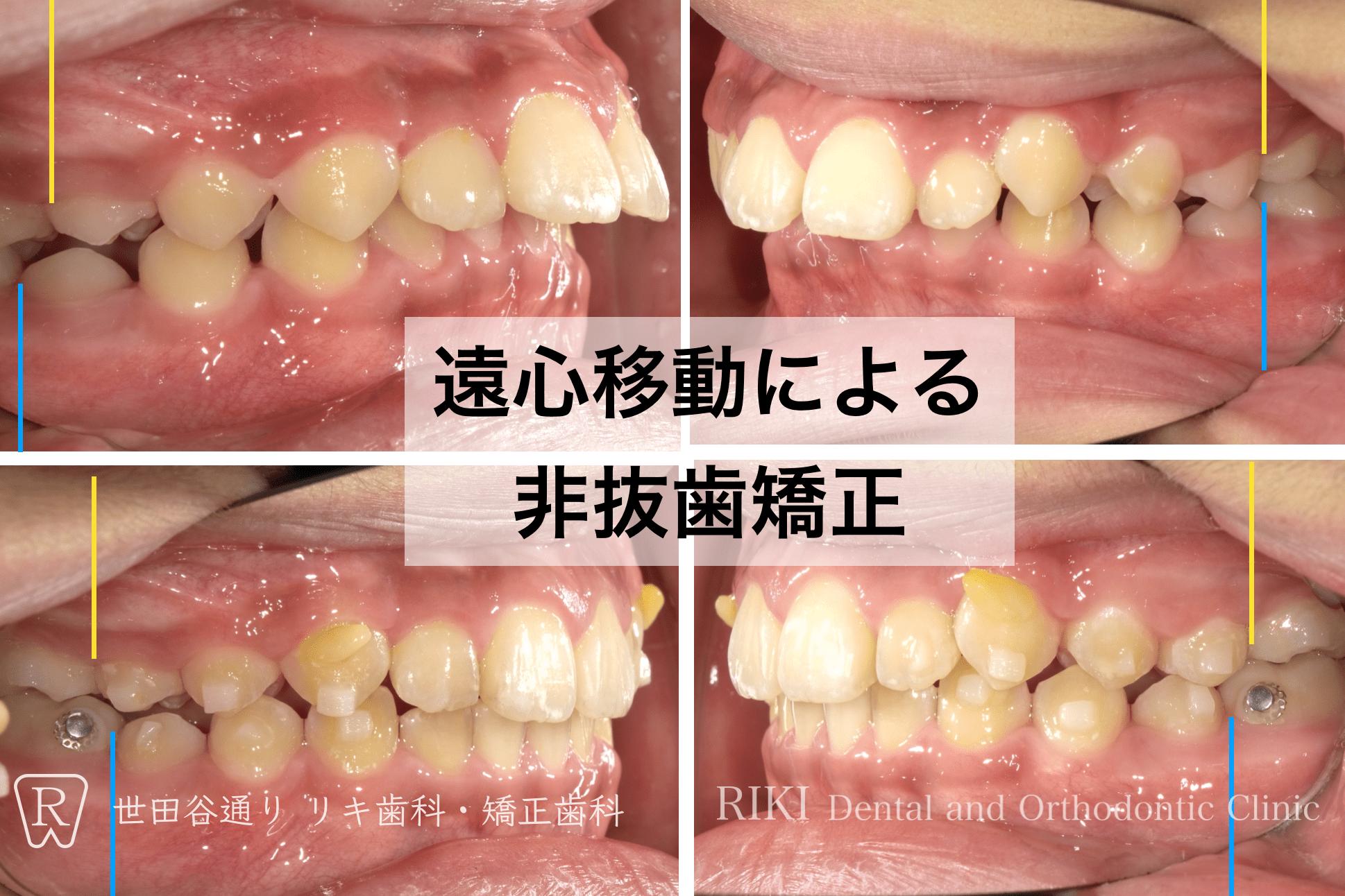 インビザライン 抜歯
